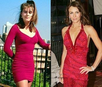 Before And After - Elizabeth Hurley