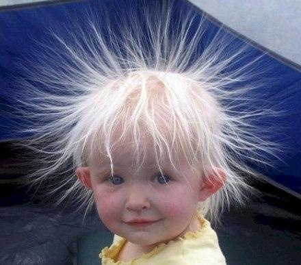 Now Do You Understand What Static Electricity Is
