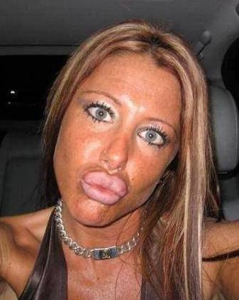 I Think Your Going To Need A Lot More Then Botox If You Want To Get Husband Lady!