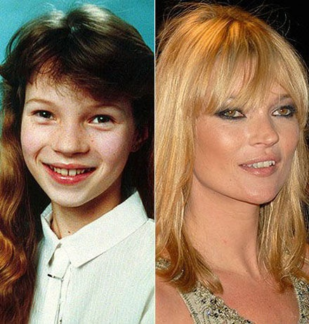 It's Amazing What A Few Years And Some Plastic Surgery Can Do